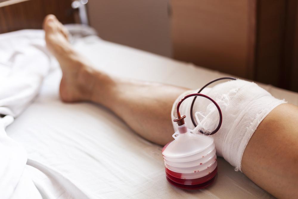 Aberta cirurgia após líquido pernas nas cardíaca