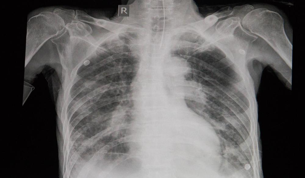 sinais sintomas edema agudo pulmonar